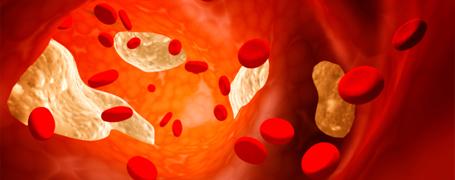 Нов консенсусен документ на Европейската асоциация по атеросклероза за лечение на фамилната хипрехолестеролемия